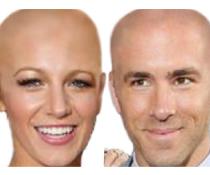 Ryan Reynolds Hairline on Ryan Reynolds